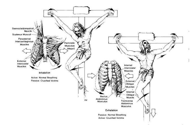 posisi tubuh yesus